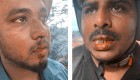 Sri Lanka: Journalists fear for their lives after assault by illegal loggers (VIDEO)